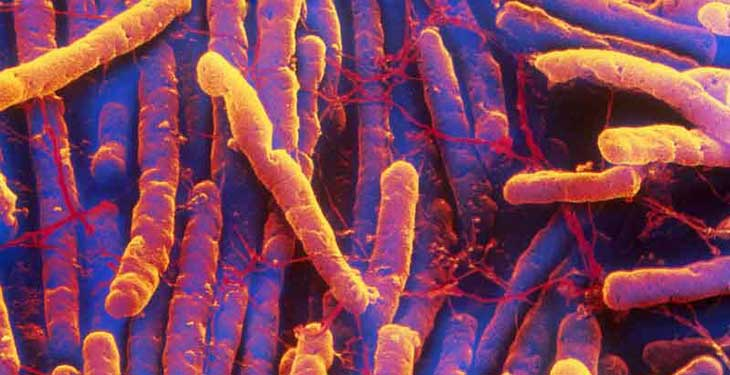 Bacteria Disinfection
